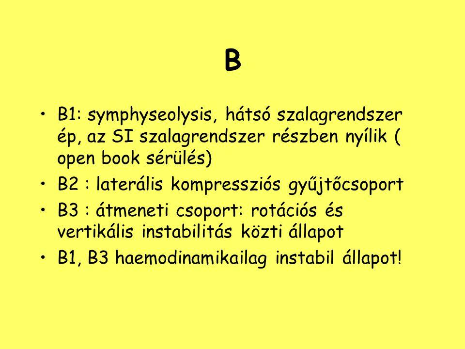 B B1: symphyseolysis, hátsó szalagrendszer ép, az SI szalagrendszer részben nyílik ( open book sérülés)