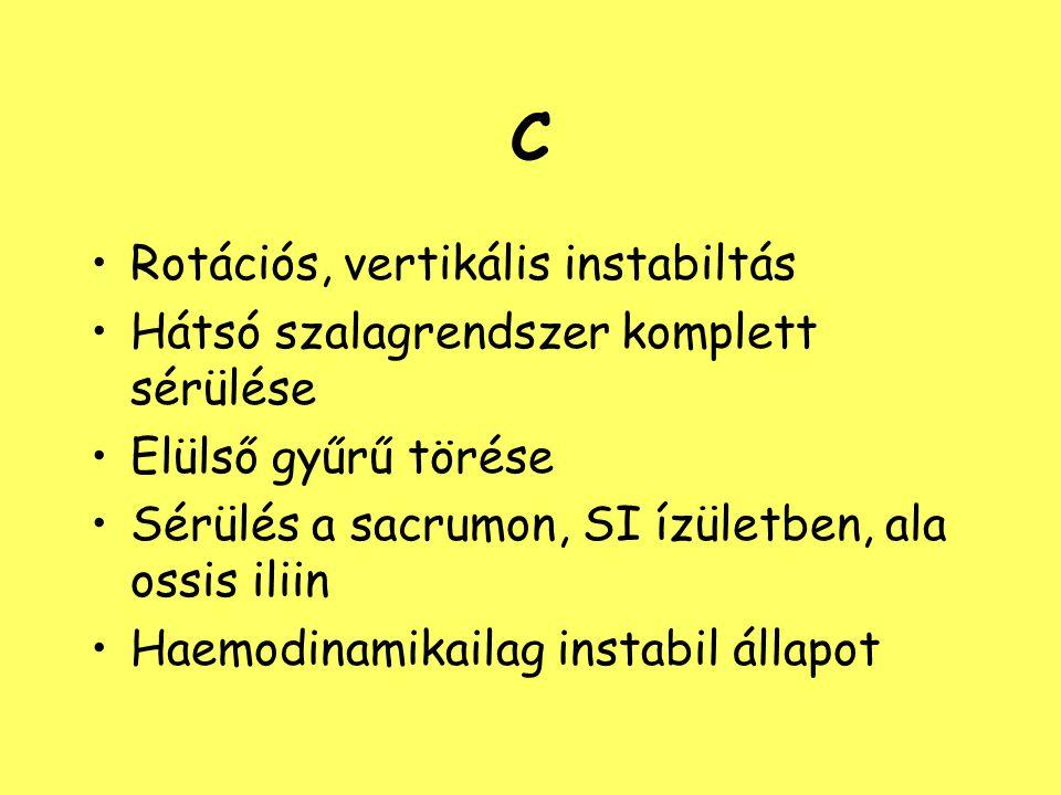 C Rotációs, vertikális instabiltás