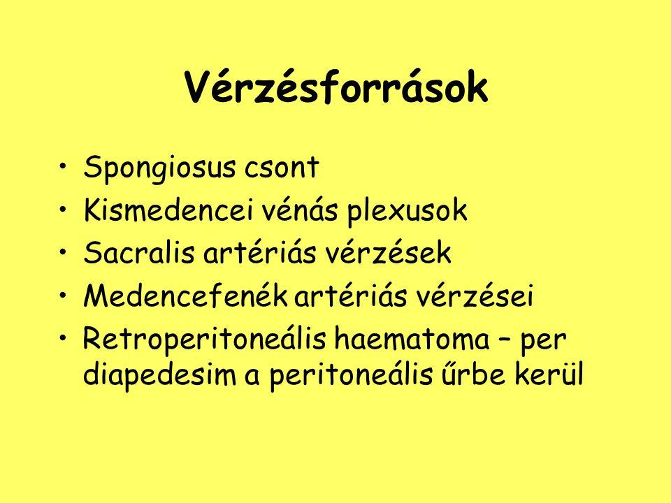Vérzésforrások Spongiosus csont Kismedencei vénás plexusok