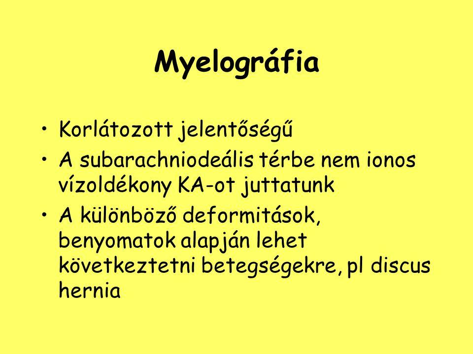 Myelográfia Korlátozott jelentőségű