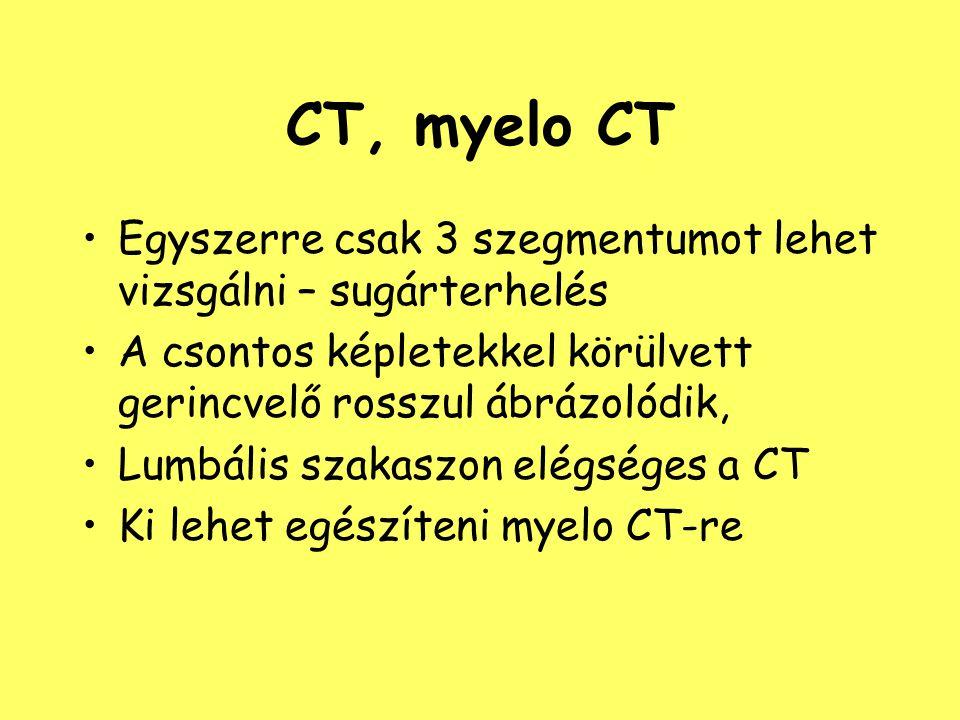 CT, myelo CT Egyszerre csak 3 szegmentumot lehet vizsgálni – sugárterhelés. A csontos képletekkel körülvett gerincvelő rosszul ábrázolódik,