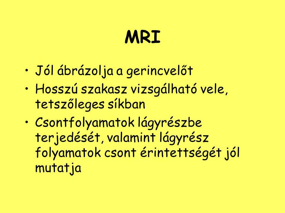 MRI Jól ábrázolja a gerincvelőt