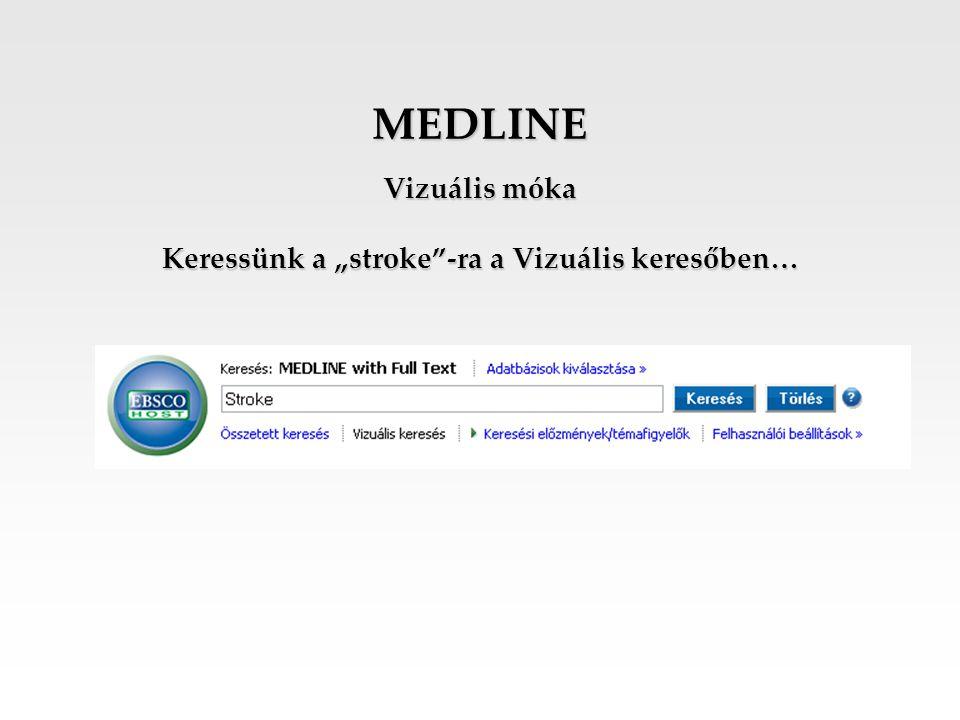 """Vizuális móka Keressünk a """"stroke -ra a Vizuális keresőben…"""