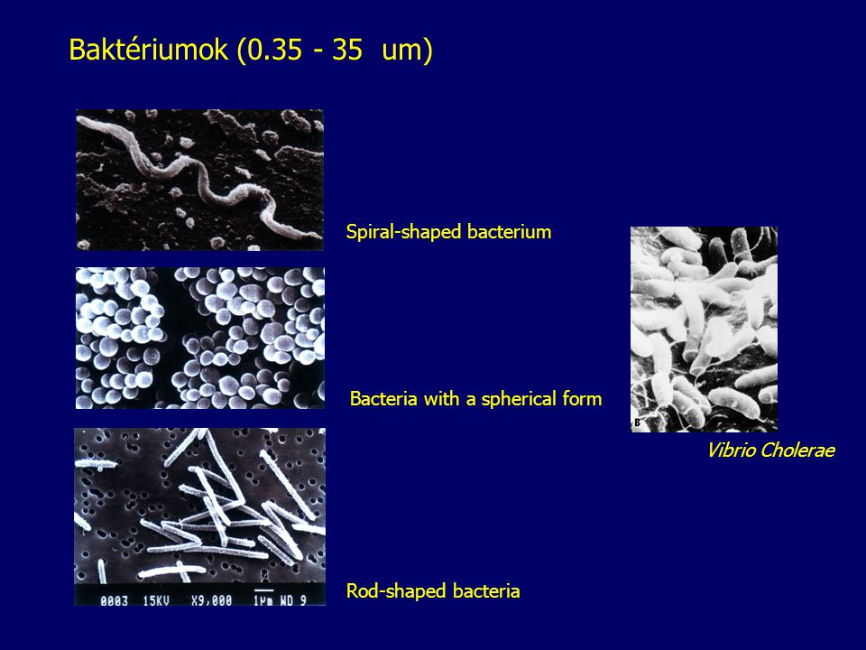 Baktériumok (0.35 - 35 um) Spiral-shaped bacterium