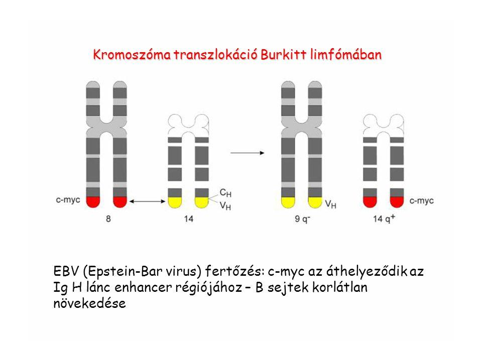 Kromoszóma transzlokáció Burkitt limfómában