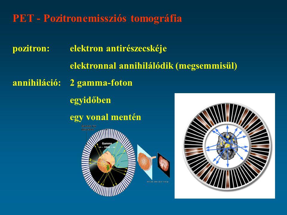 PET - Pozitronemissziós tomográfia