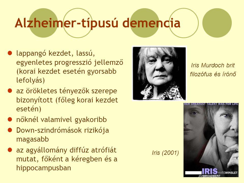 Alzheimer-típusú demencia