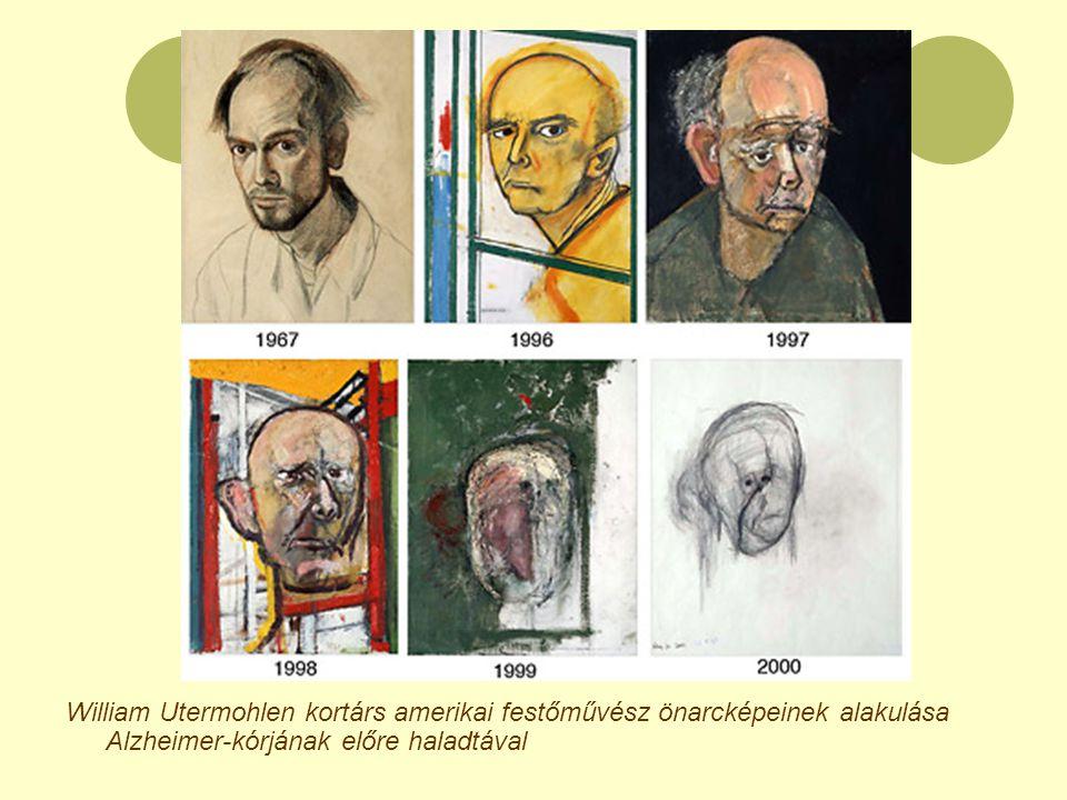William Utermohlen kortárs amerikai festőművész önarcképeinek alakulása Alzheimer-kórjának előre haladtával