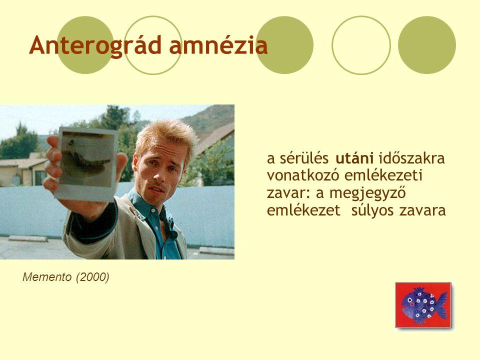 Anterográd amnézia a sérülés utáni időszakra vonatkozó emlékezeti zavar: a megjegyző emlékezet súlyos zavara.