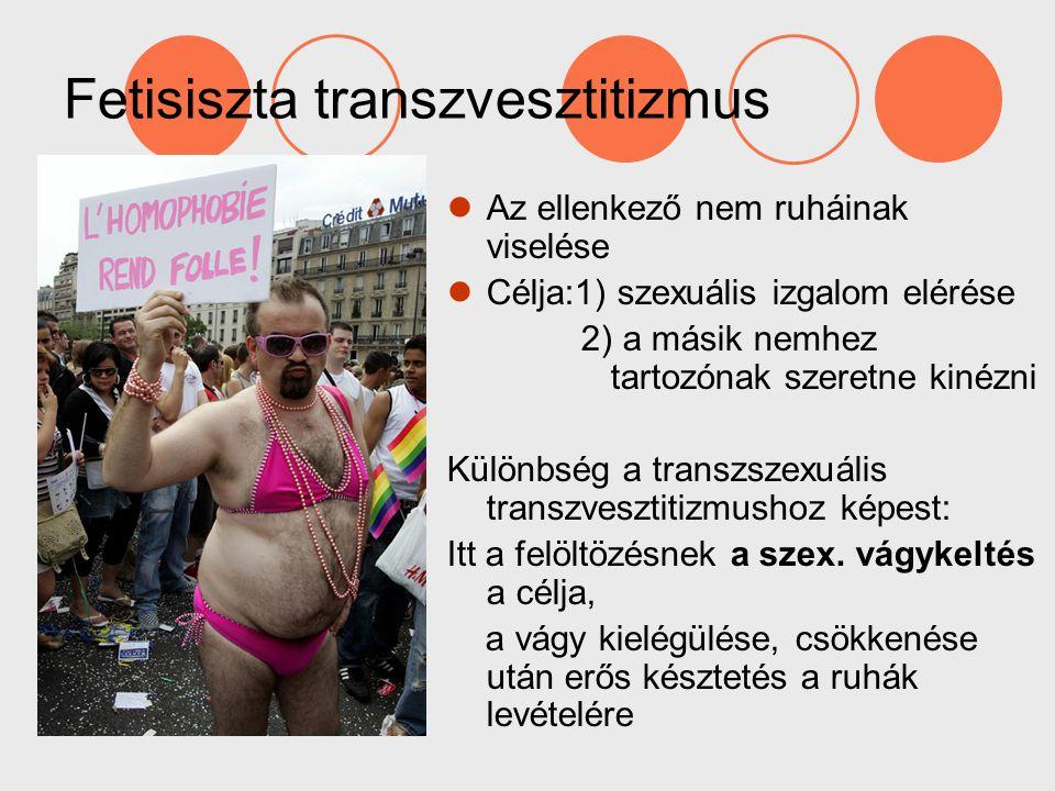 Fetisiszta transzvesztitizmus