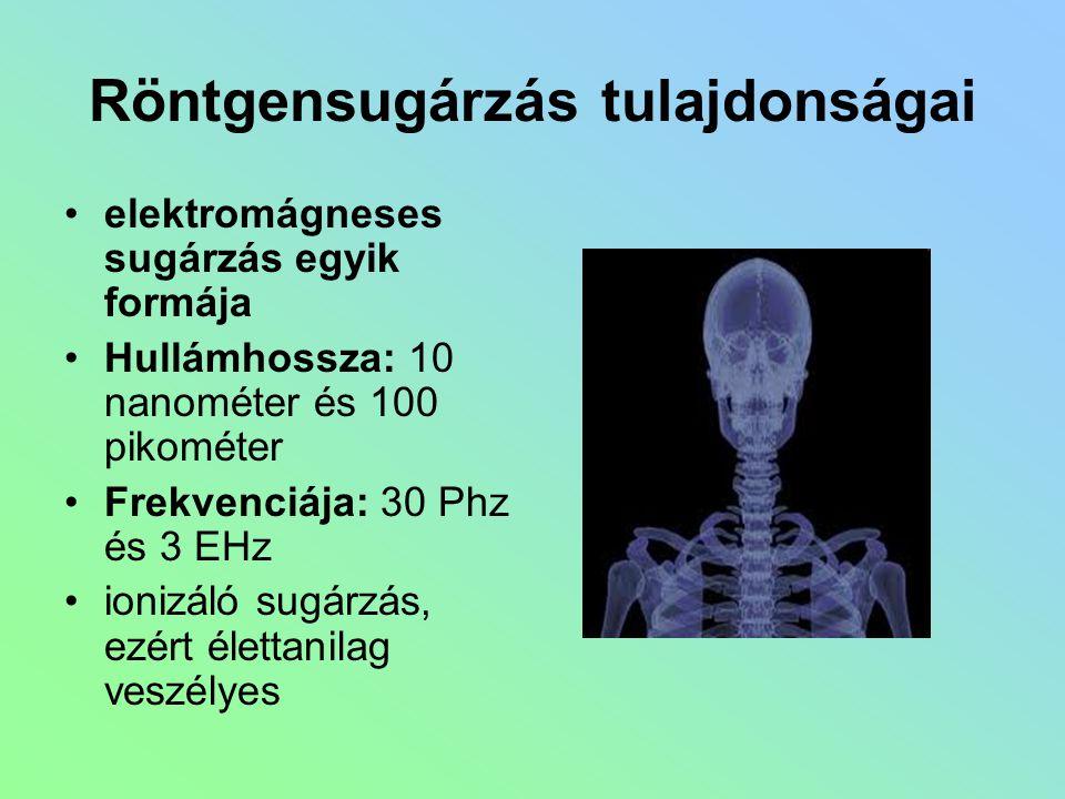 Röntgensugárzás tulajdonságai