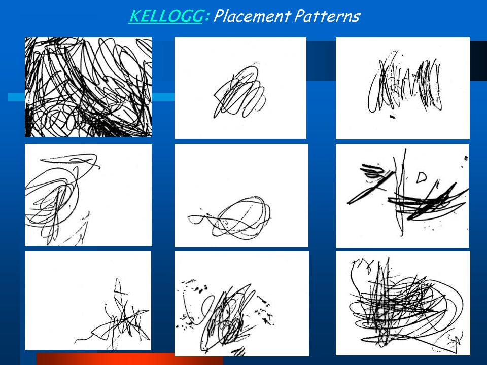 KELLOGG: Placement Patterns