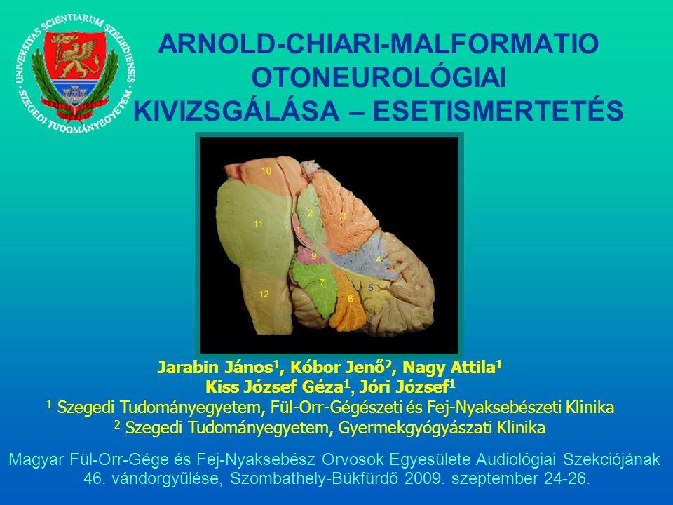 ARNOLD-CHIARI-MALFORMATIO OTONEUROLÓGIAI KIVIZSGÁLÁSA – ESETISMERTETÉS