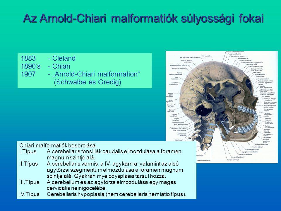 Az Arnold-Chiari malformatiók súlyossági fokai