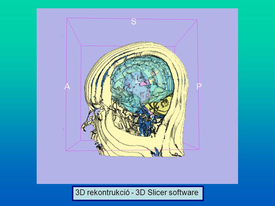 3D rekontrukció - 3D Slicer software