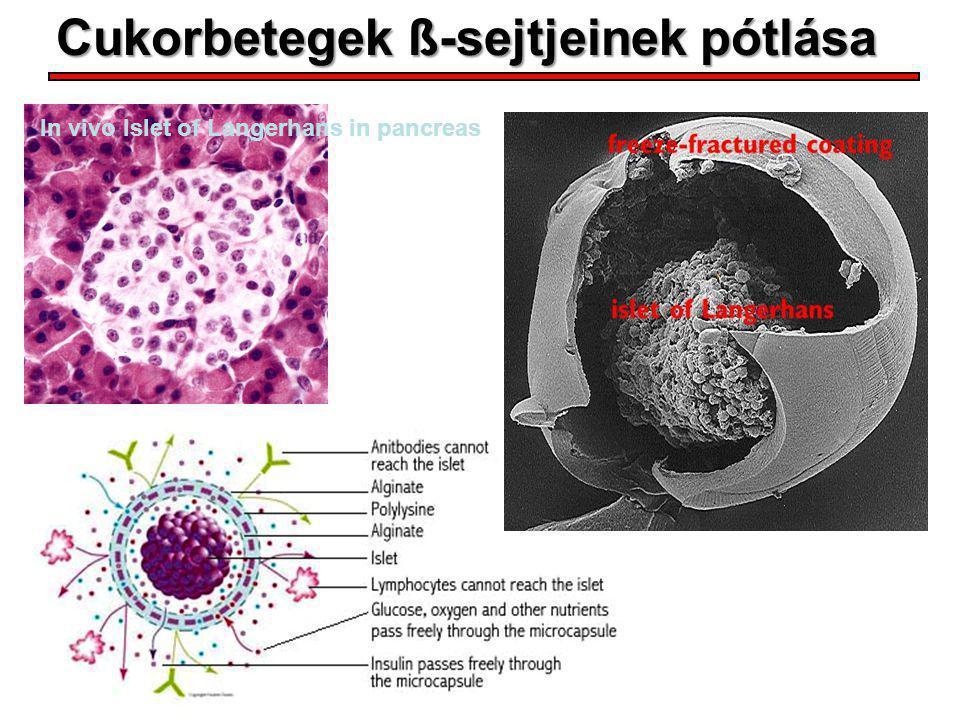 Cukorbetegek ß-sejtjeinek pótlása