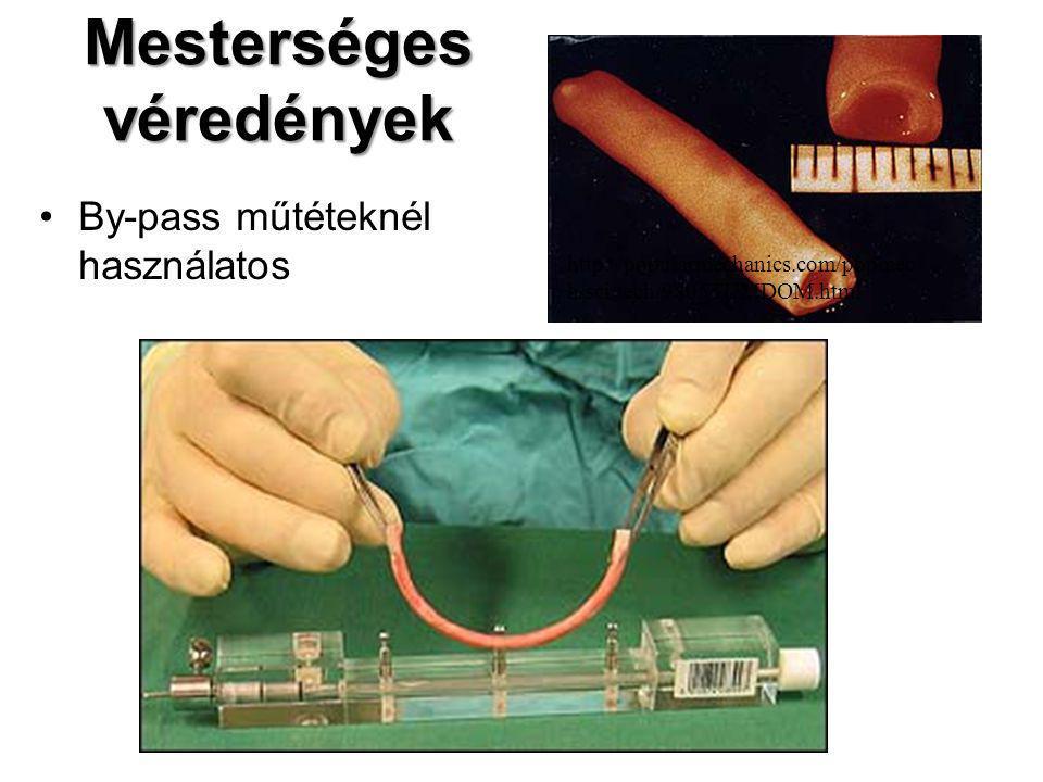 Mesterséges véredények