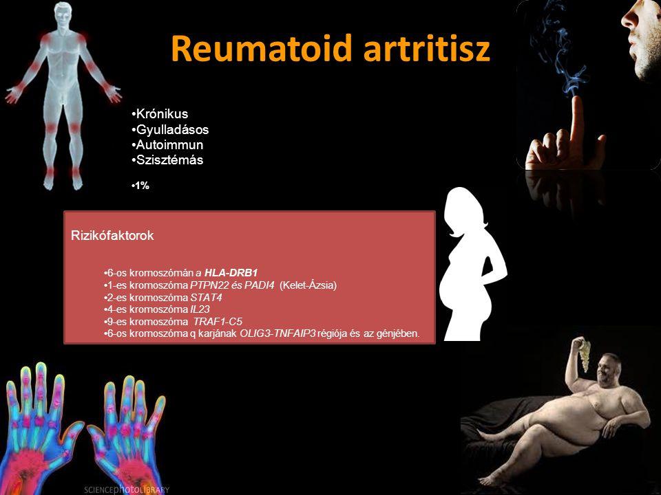 Reumatoid artritisz Krónikus Gyulladásos Autoimmun Szisztémás