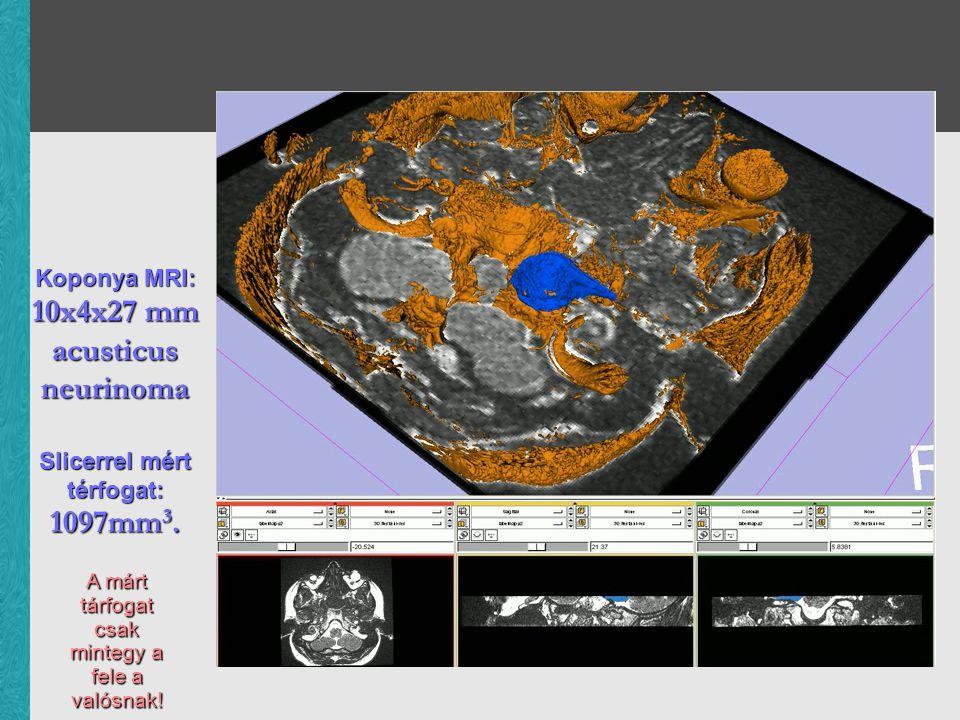 Koponya MRI: 10x4x27 mm acusticus neurinoma