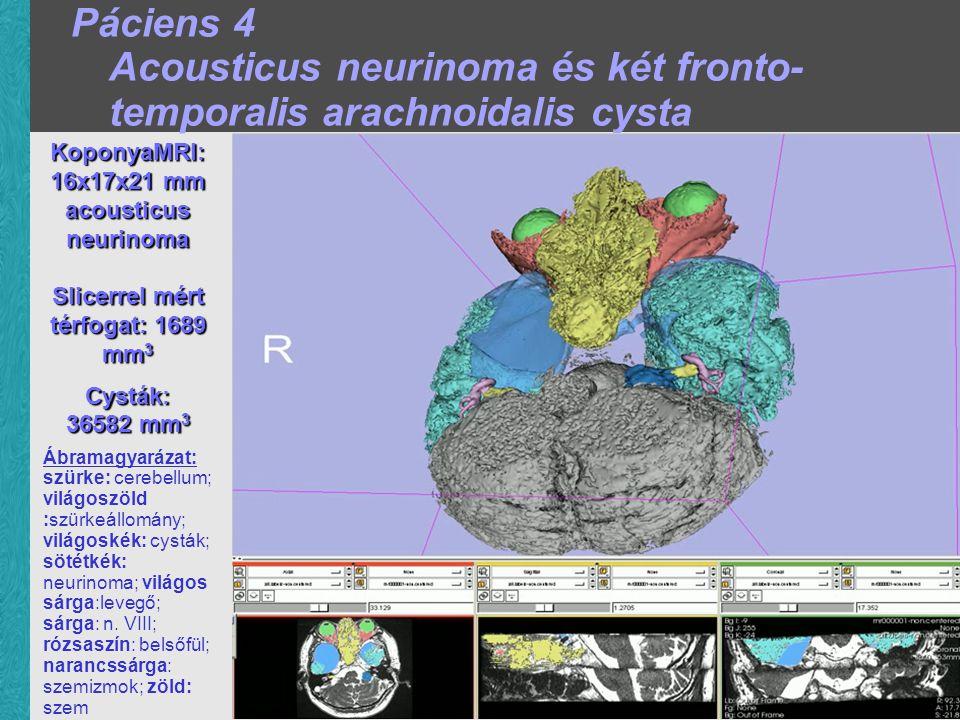 KoponyaMRI: 16x17x21 mm acousticus neurinoma