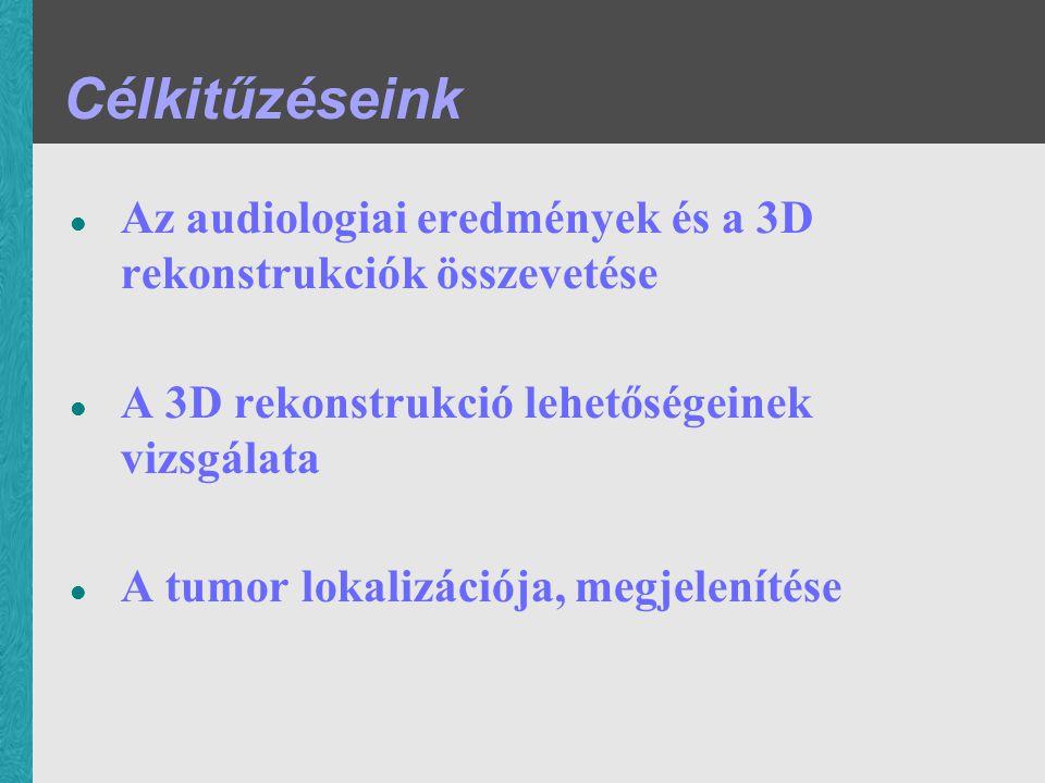 Célkitűzéseink Az audiologiai eredmények és a 3D rekonstrukciók összevetése. A 3D rekonstrukció lehetőségeinek vizsgálata.