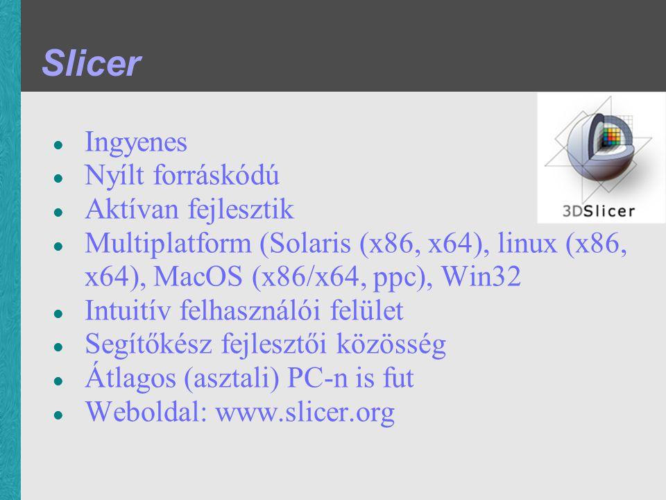 Slicer Ingyenes Nyílt forráskódú Aktívan fejlesztik