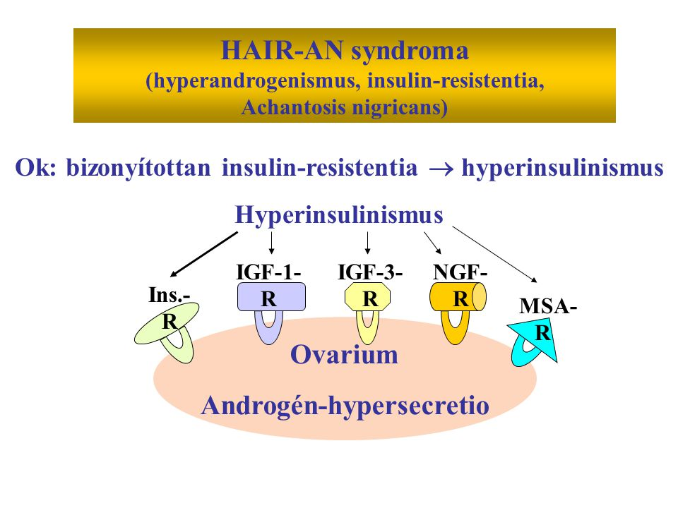 HAIR-AN syndroma Ovarium Androgén-hypersecretio