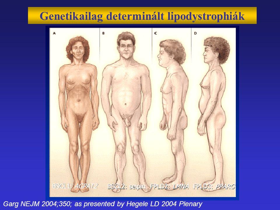 Genetikailag determinált lipodystrophiák