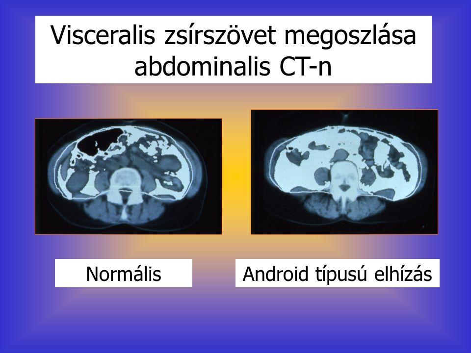 Visceralis zsírszövet megoszlása abdominalis CT-n