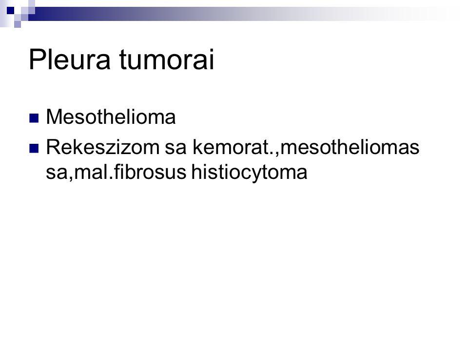 Pleura tumorai Mesothelioma