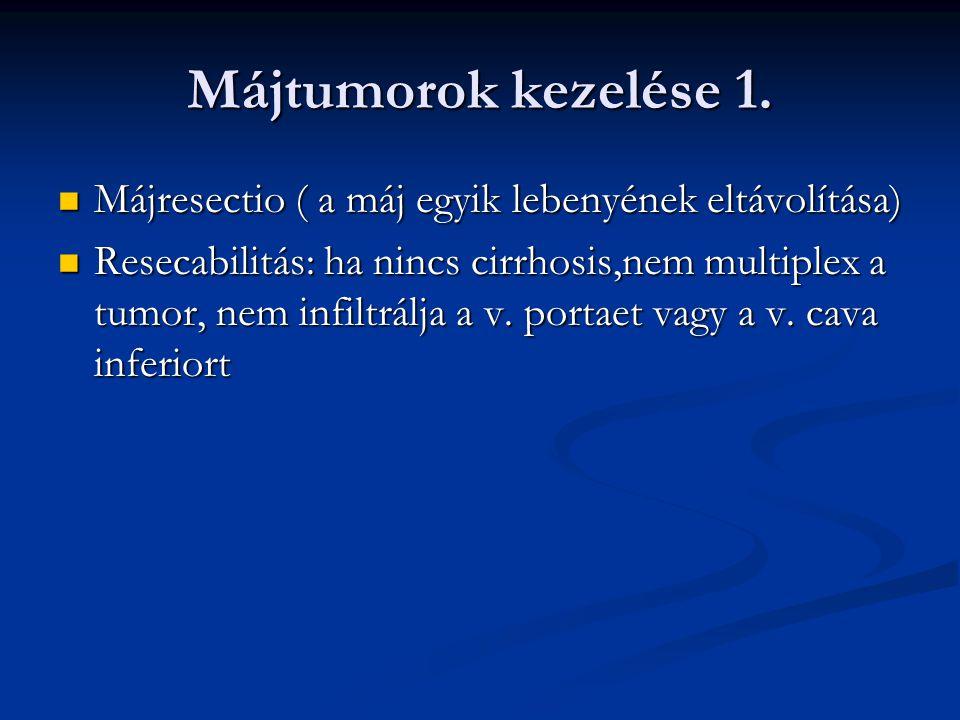 Májtumorok kezelése 1. Májresectio ( a máj egyik lebenyének eltávolítása)