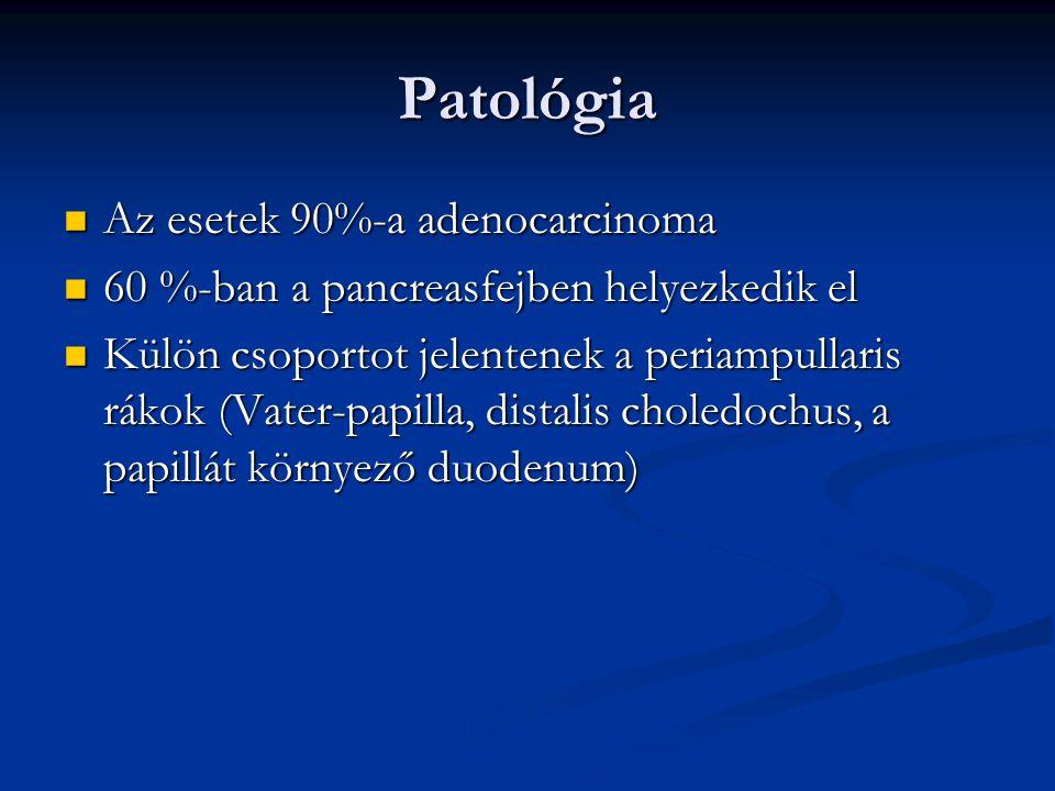Patológia Az esetek 90%-a adenocarcinoma