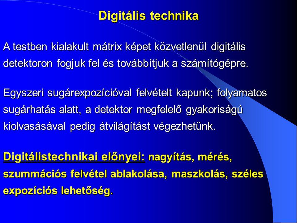 Digitális technika A testben kialakult mátrix képet közvetlenül digitális detektoron fogjuk fel és továbbítjuk a számítógépre.