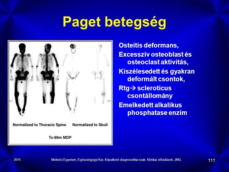 Paget betegség Osteitis deformans,