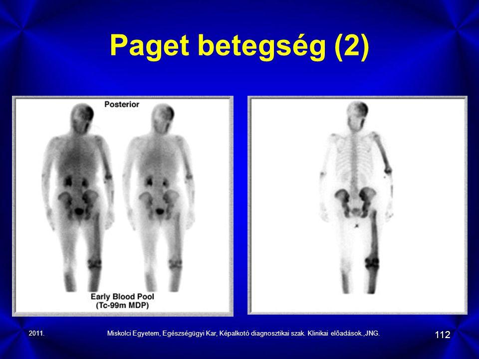Paget betegség (2) 2011. Miskolci Egyetem, Egészségügyi Kar, Képalkotó diagnosztikai szak.