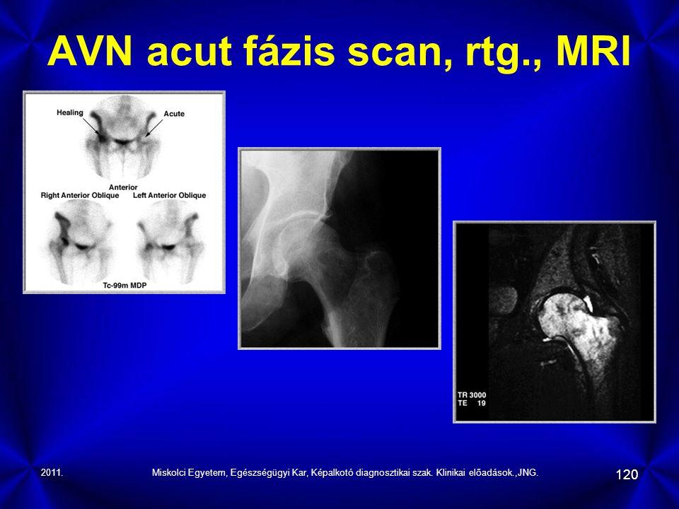 AVN acut fázis scan, rtg., MRI