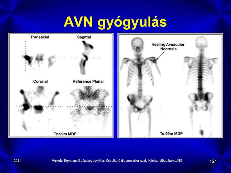 AVN gyógyulás 2011. Miskolci Egyetem, Egészségügyi Kar, Képalkotó diagnosztikai szak.