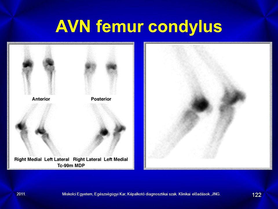 AVN femur condylus 2011. Miskolci Egyetem, Egészségügyi Kar, Képalkotó diagnosztikai szak.