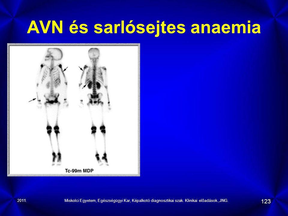 AVN és sarlósejtes anaemia