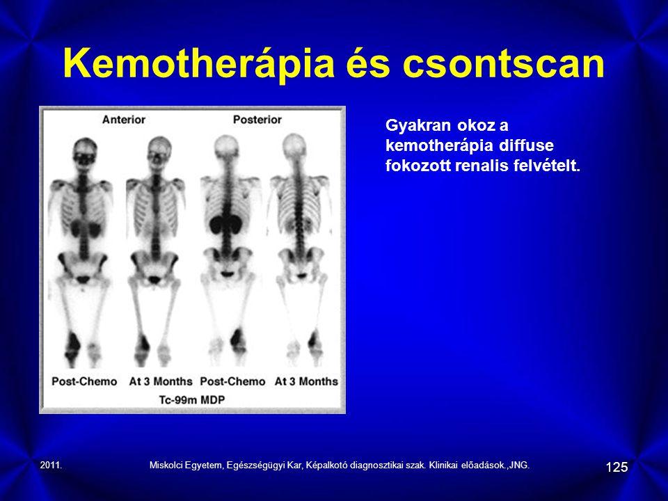 Kemotherápia és csontscan