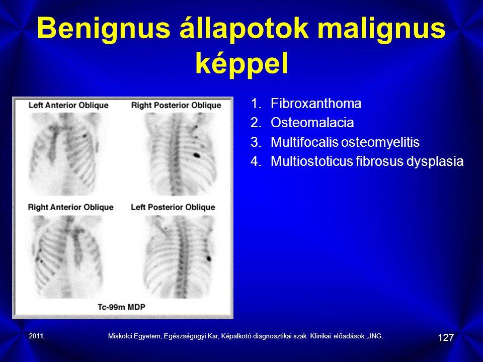 Benignus állapotok malignus képpel