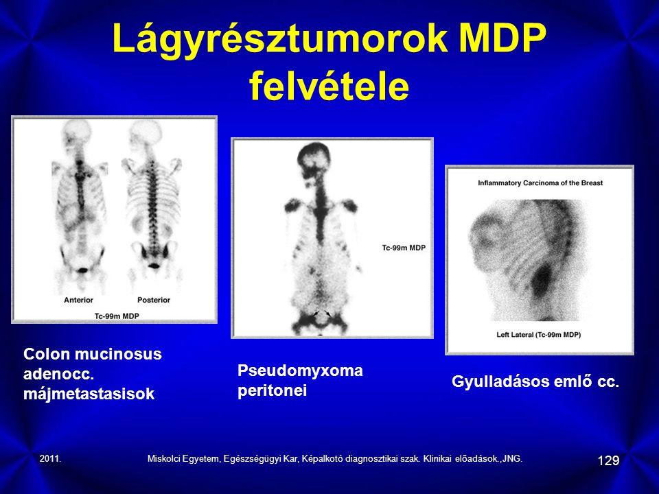 Lágyrésztumorok MDP felvétele