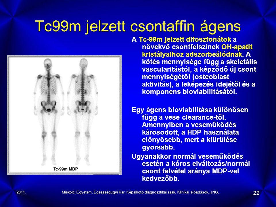 Tc99m jelzett csontaffin ágens