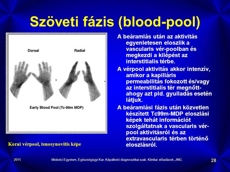 Szöveti fázis (blood-pool)