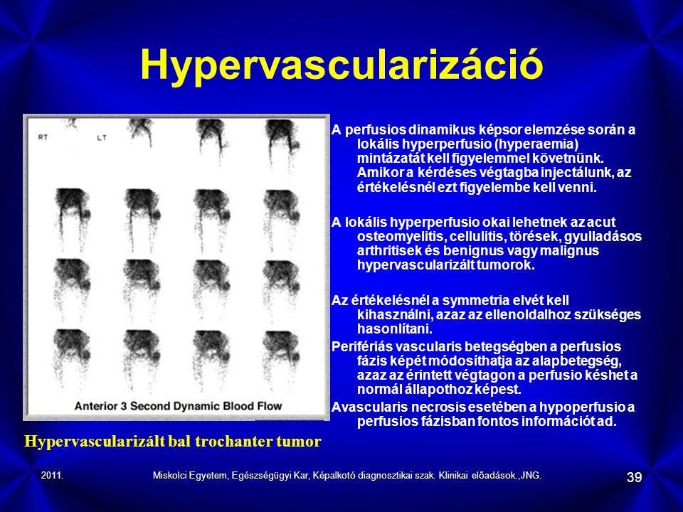 Hypervascularizáció Hypervascularizált bal trochanter tumor