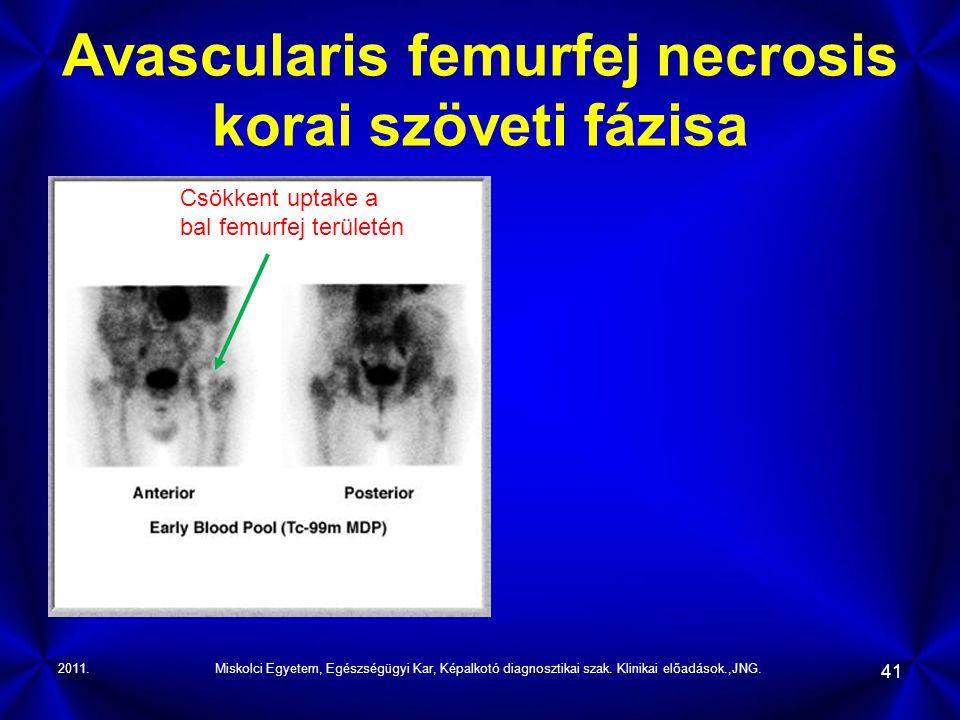 Avascularis femurfej necrosis korai szöveti fázisa