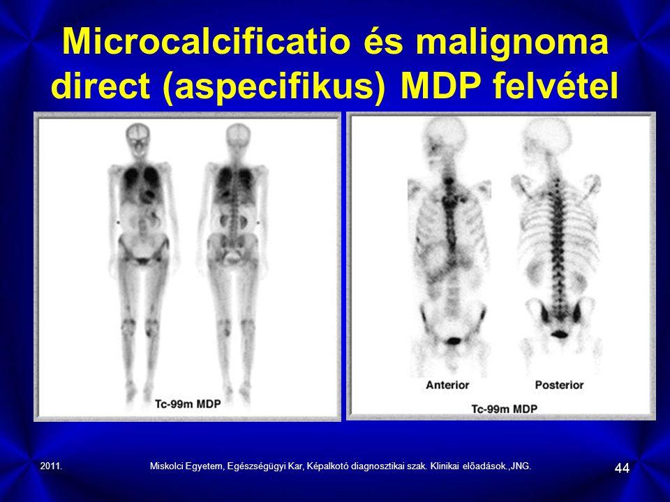 Microcalcificatio és malignoma direct (aspecifikus) MDP felvétel