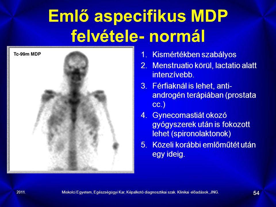 Emlő aspecifikus MDP felvétele- normál