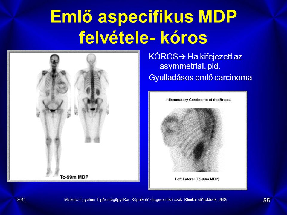 Emlő aspecifikus MDP felvétele- kóros
