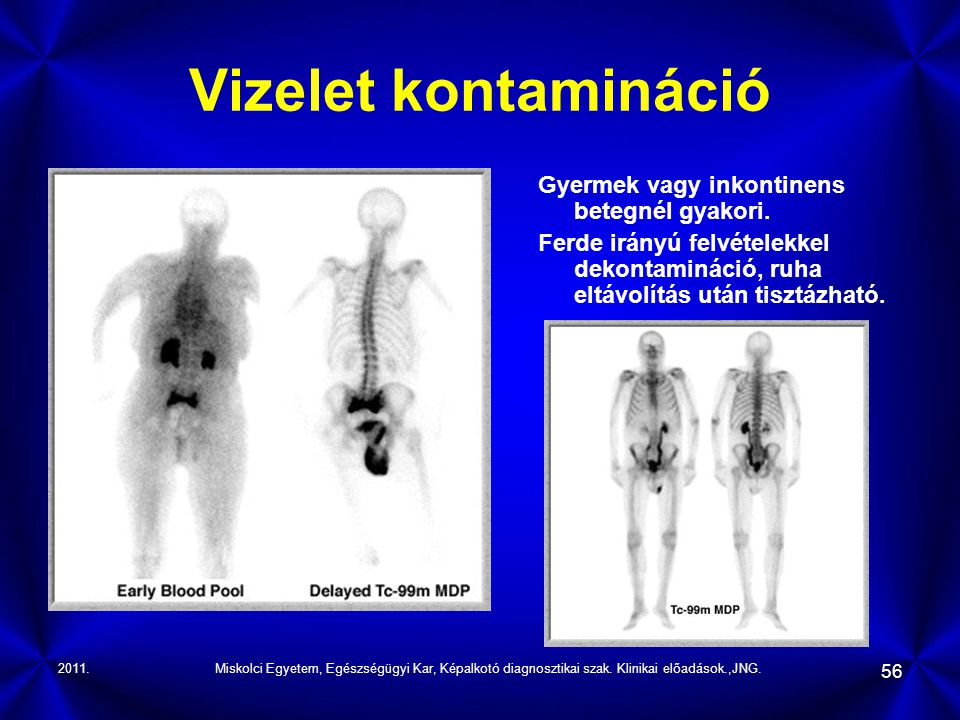 Vizelet kontamináció Gyermek vagy inkontinens betegnél gyakori.